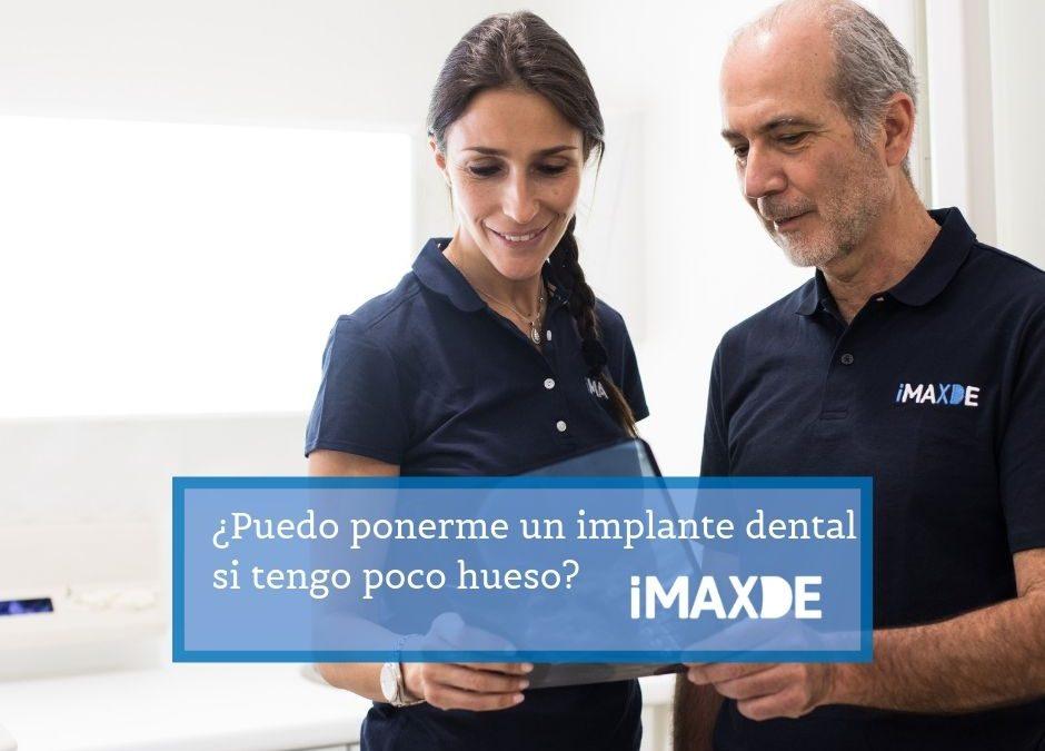 ¿Puedo ponerme un implante dental si tengo poco hueso?